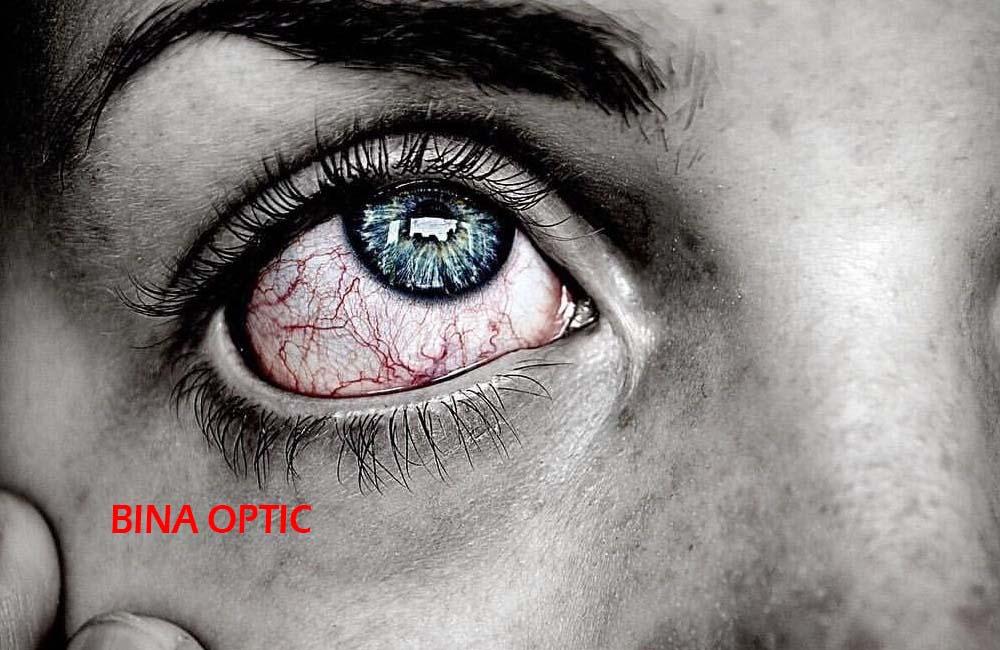 علائم چشم